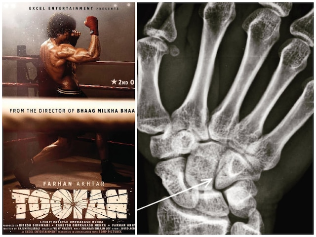 Farhan Akhtar Suffers 'Boxing Injury' While Shooting For 'Toofan'! See Picture!