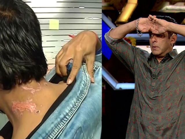 Bigg Boss 13: Twitterati Slam Salman Khan & Makers After Evicted Siddharth Dey Shows His Gruesome Wounds [VIRAL VIDEO]