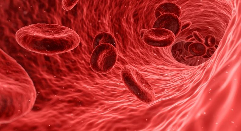 Symptoms of poor blood circulation Poor blood circulation can cause many disease in body