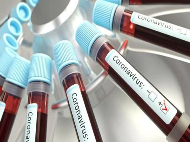 Coronavirus 14 new cases found in lucknow including four nurses