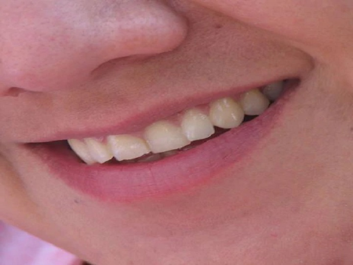 Sensitive Teeth Home Remedies 5 Ways to Treat Tooth Pain
